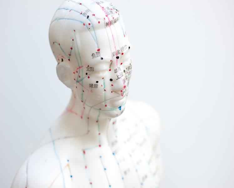 Akupunktur Orthopädie in Eckental-600